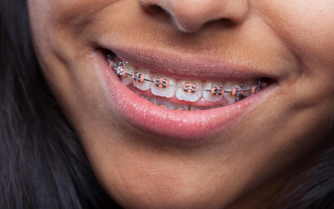 Apparecchio per denti_studio Dr Brandolini