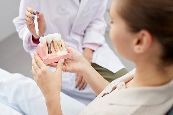 Come funzionano gli impianti dentali